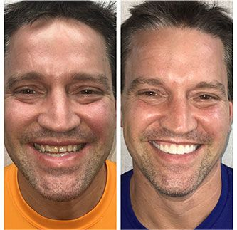Smile Gallery of Happy Patients