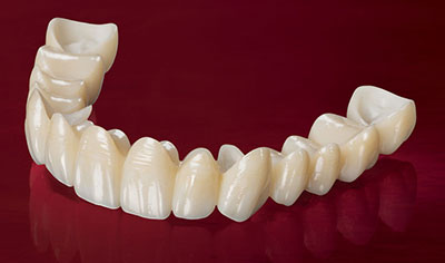BruxZir Solid Zirconia Bridge
