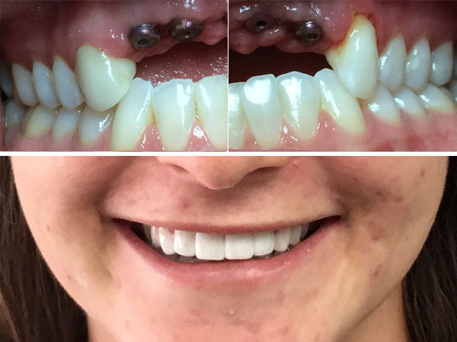Missing Upper Teeth Before/After