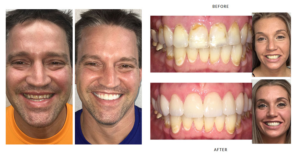 Successful Dental Treatments in McMurray, PA